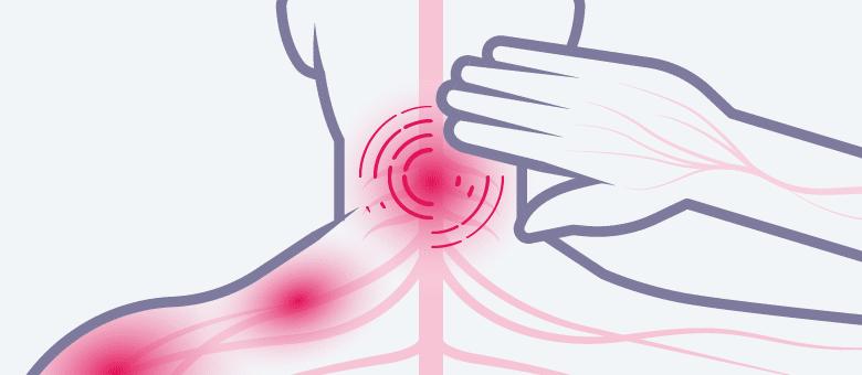 cervicaleradiculopathie